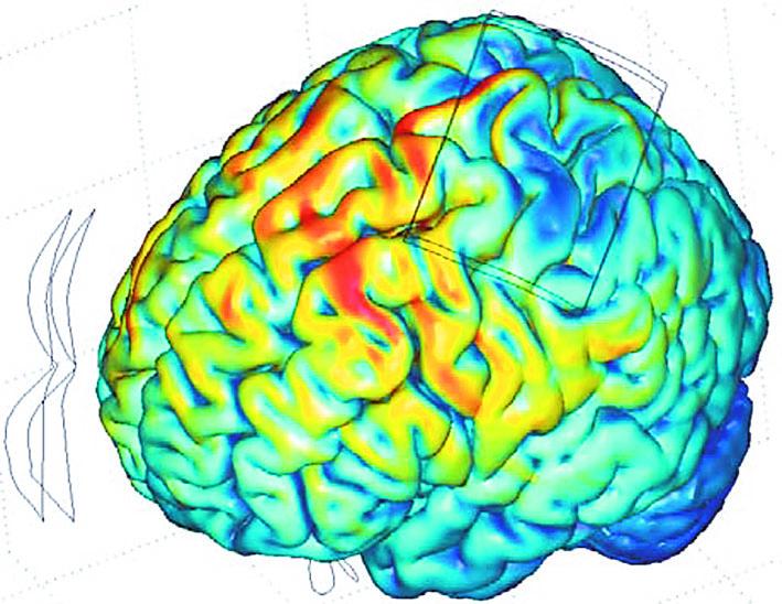 Κρανιοεγκεφαλική Διέγερση